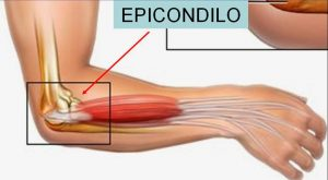 epicóndilo lateral