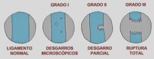 tipos de esguince: grados i, ii y iii