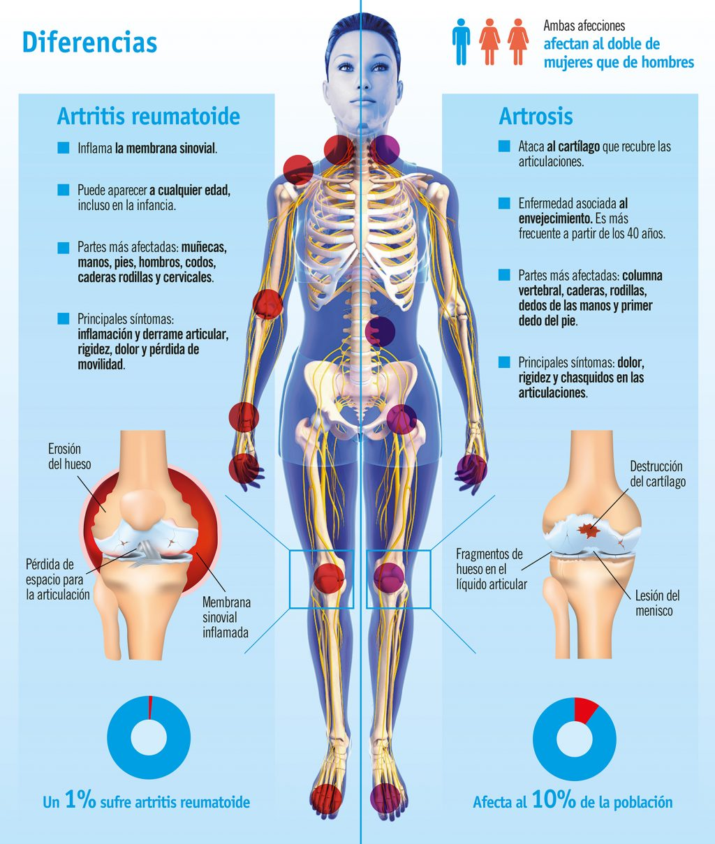 Artrosis Vs. Artritis