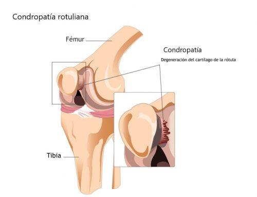 Condropatía rotuliana